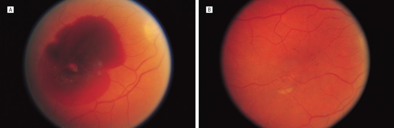 Лазерная коагуляция сетчатки глаза: показания, ход, последствия