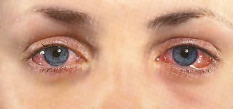 Что такое хемоз (отек) конъюктивины - причины, лечение, виды