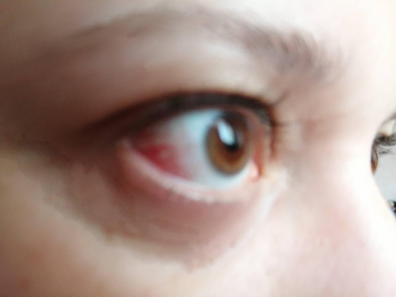 Ткнули пальцем в глаз лечение