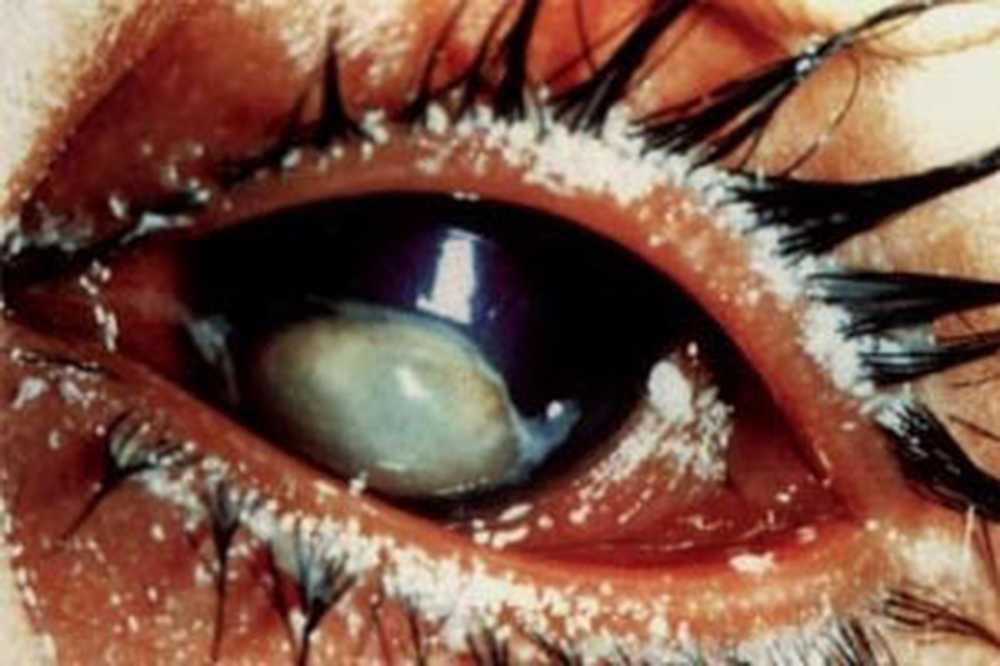 Куриная слепота развивается при нехватке витамина