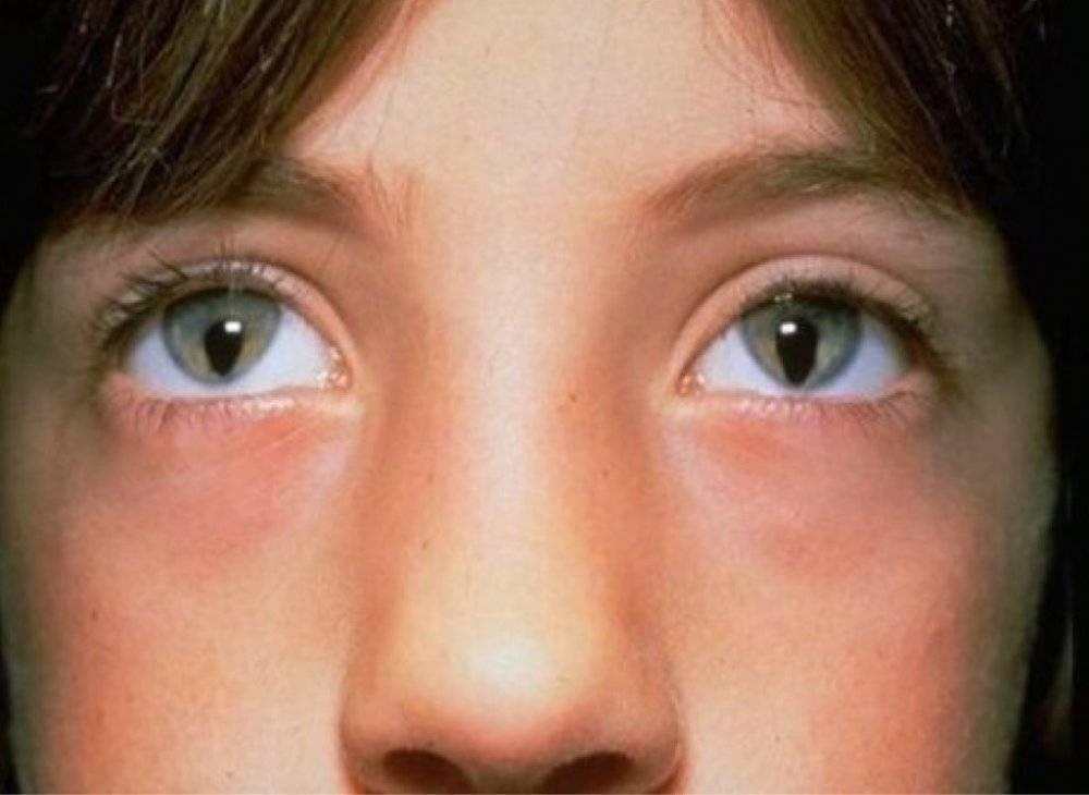Разный размер зрачков у ребенка