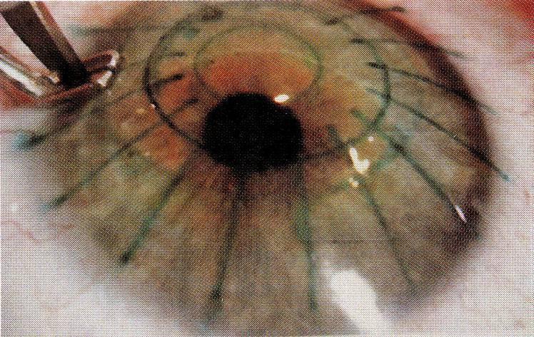 Астигматизм — последствия после лазерной коррекции, противопоказания к операции — глаза эксперт