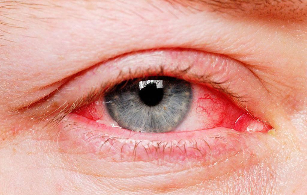 Как убрать покраснение глаз