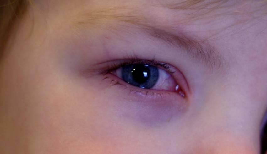 У грудничка красные глаза: причины данного явления у новорожденного ребенка (после родов) и младенца до года