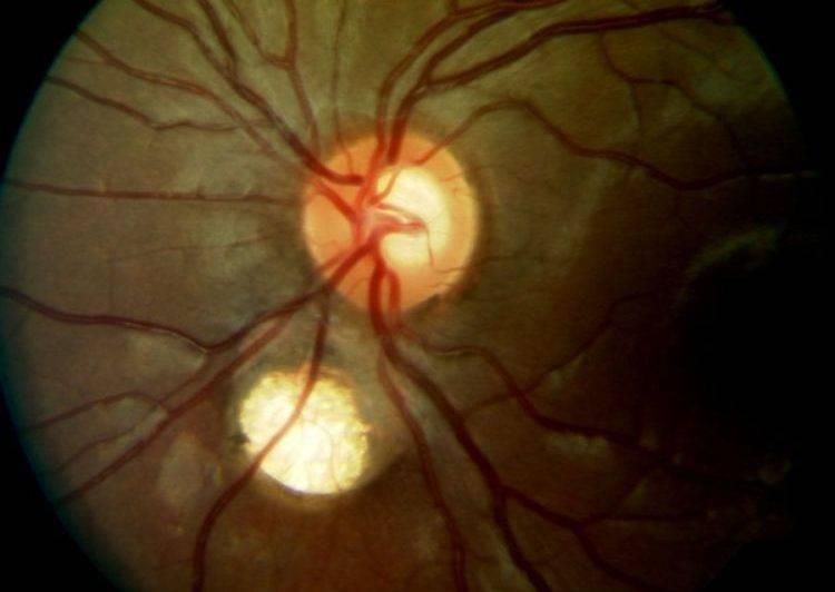 Восстановление зрительного нерва при глаукоме: методы лечения — глаза эксперт