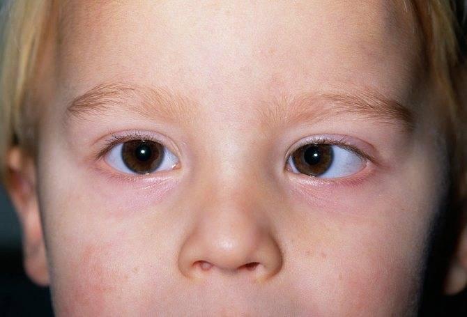 В каких случаях встречается анизокория у ребенка?