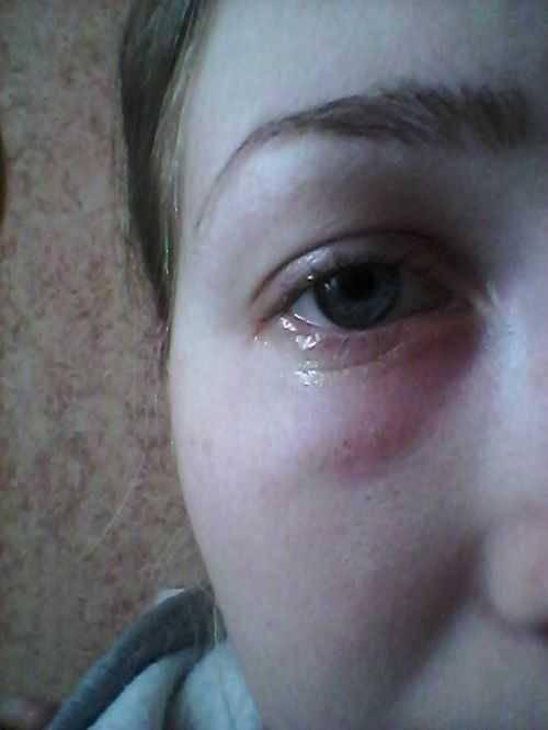 Что делать, если у ребенка отек глаз?