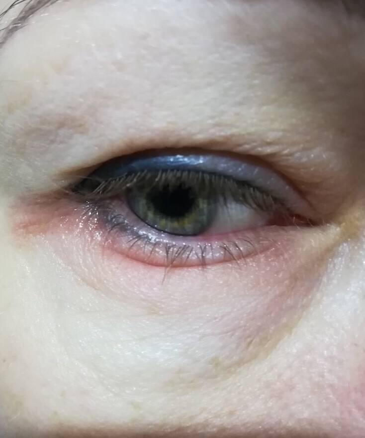 Под глазом красное пятно шелушится и чешется