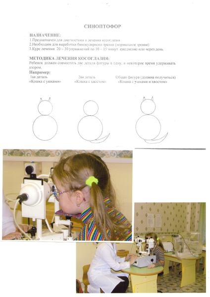Лечит ли приобретенное косоглазие у взрослых с помощьюсиноптофор | глазной.ру