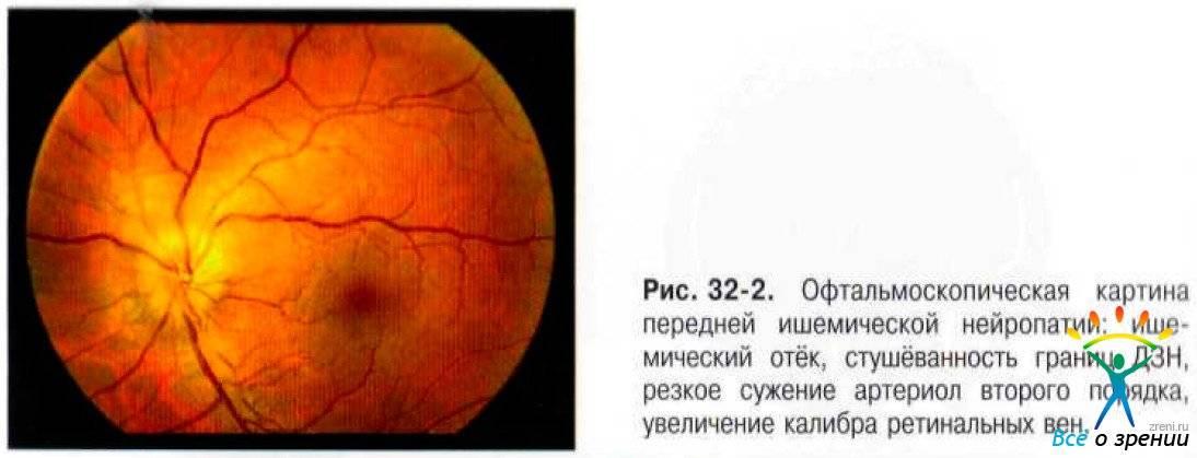 Задняя ишемическая нейропатия зрительного нерва - лечение, симптомы ишемической нейропатии зрительного нерва   медицинский портал spacehealth