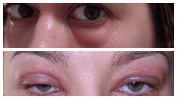 Отек глаз при аллергии у ребенка и взрослого: как быстро снять