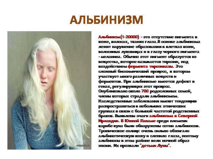 Что такое альбинизм у человека: причины, симптомы и особенности заболевания