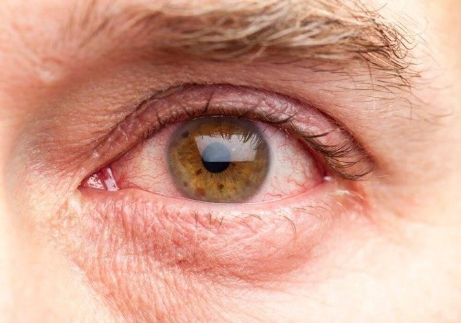 Почему слезятся глаза, и как это лечится: причины и факты