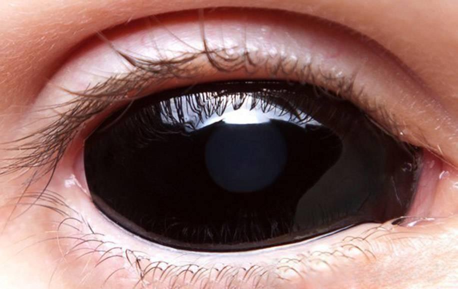 Черные линзы на весь глаз