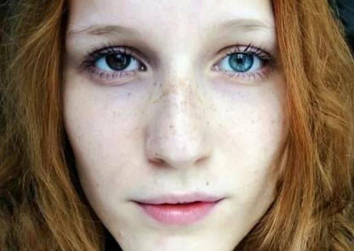 Разный цвет глаз: все что вы хотели знать о гетерохромии