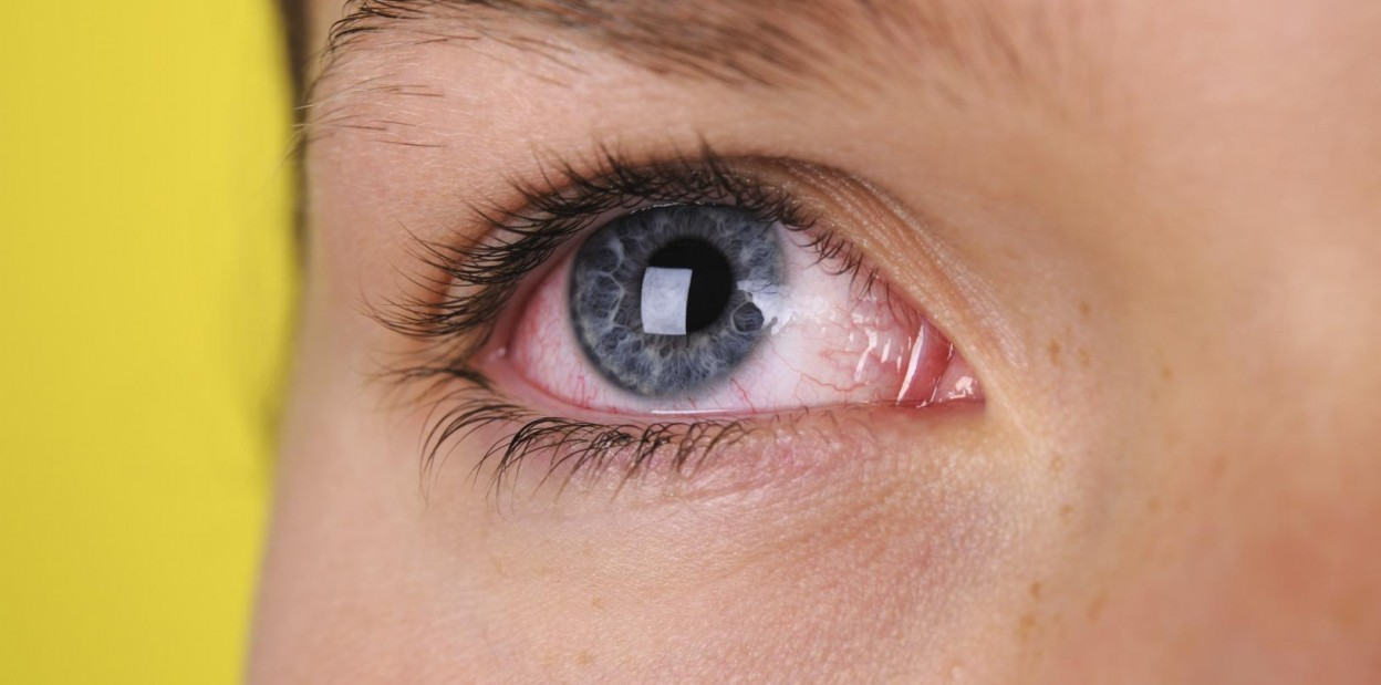 От чего звездочки в глазах – лечение артроза и артрита, лечение подагры