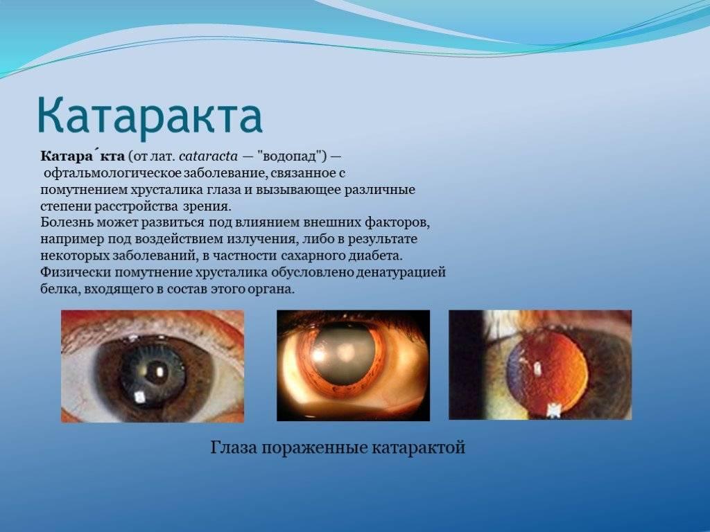 Катаракта: диагностика, симтпомы, лечение и возможные осложнения