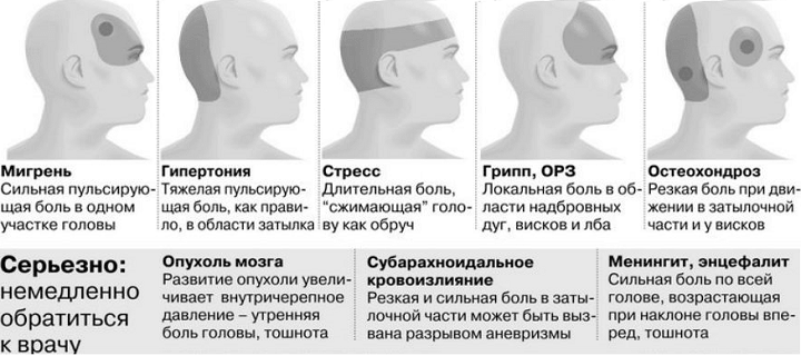 Почему болит левый висок головы и отдает в глаз - что делать когда боли с левой стороны
