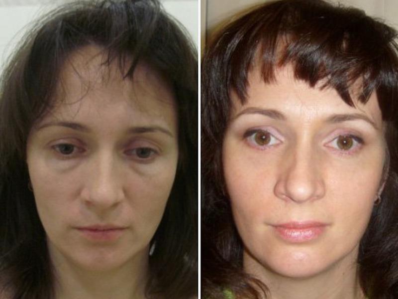 Жировая грыжа под глазами: лечение без операции народными средствами