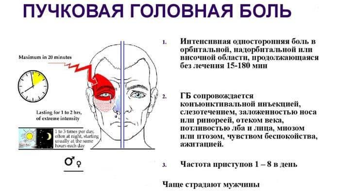 Головная боль и больно поднимать глаза вверх - головная боль