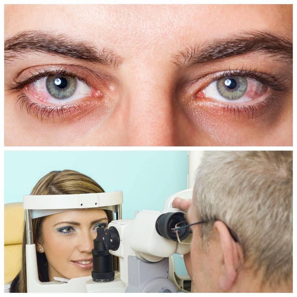 Синдром сухого глаза: народные средства и методы лечения