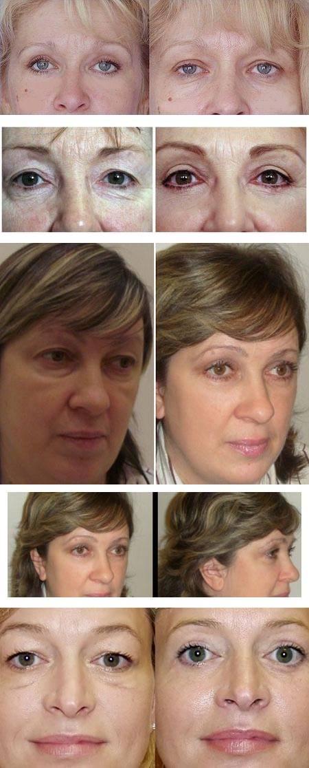 Блефаропластика верхних век (верхняя блефаропластика) показания, отзывы, фото до и после операции