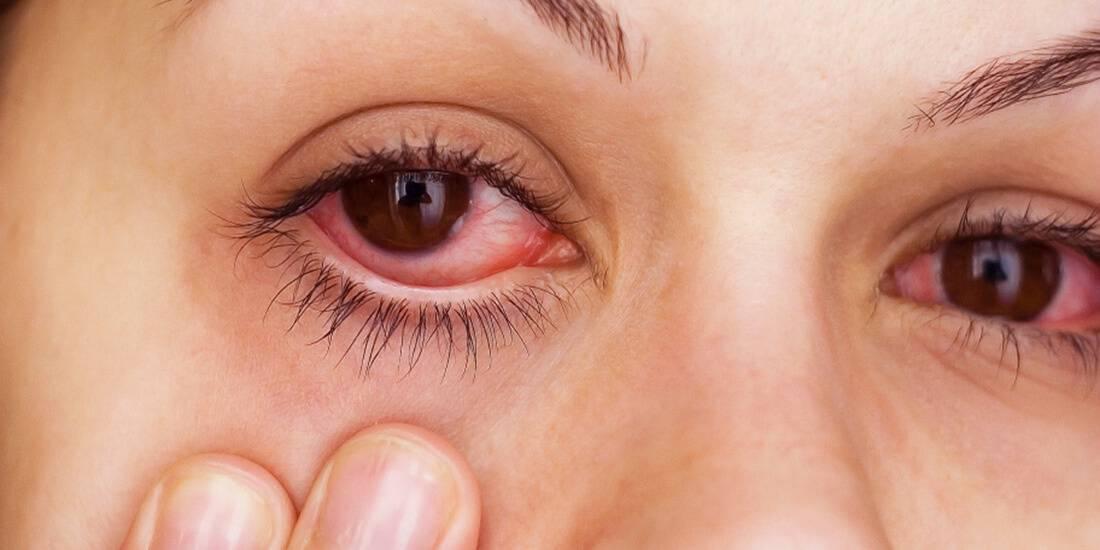 Красные глаза: причины, лечение у взрослых и детей, диагностика постоянного покраснения, профилактика гиперемии, сопутствующие симптомы (сосуды и капилляры в глазах)
