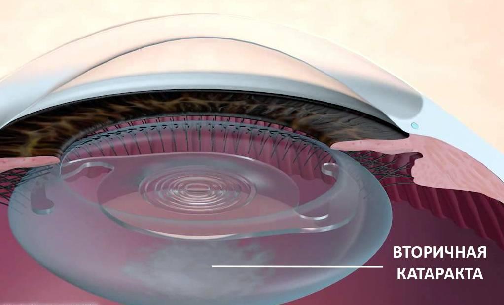 Вторичная катаракта после операции: симптомы и лечение