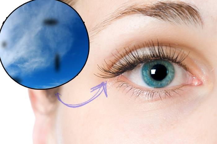 Искры в глазах: причины вспышки и огоньков в глазах при моргании