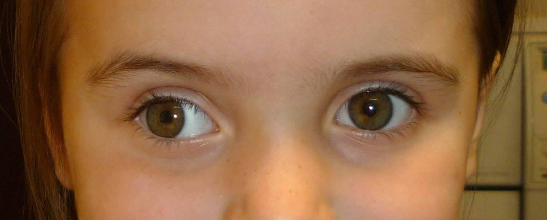 Как определить непостоянное косоглазие? — глаза эксперт