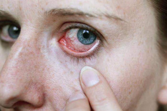 """Как убрать красноту глаз в домашних условиях - """"здоровое око"""""""