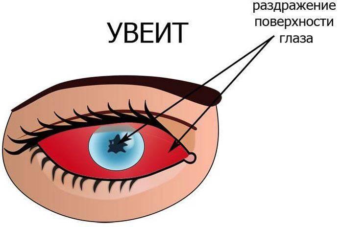 Что такое артифакия глаза и показания к операции