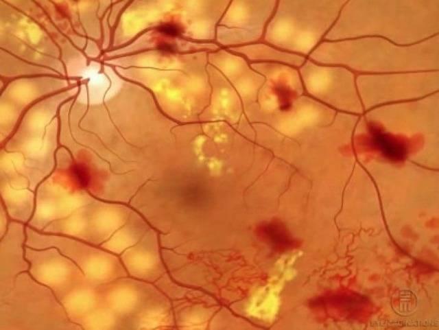 Почему сосуды сужаются и какие симптомы испытывает человек при сужении сосудов разных органов