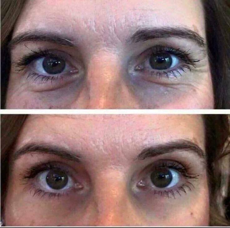 Впалые глаза. макияж для впалых глаз