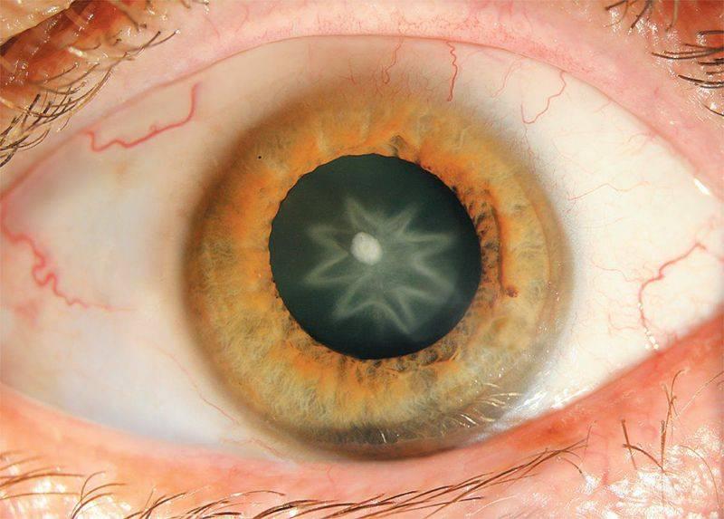 Контузии глаза, степени тяжести, лечение. - современная офтальмология