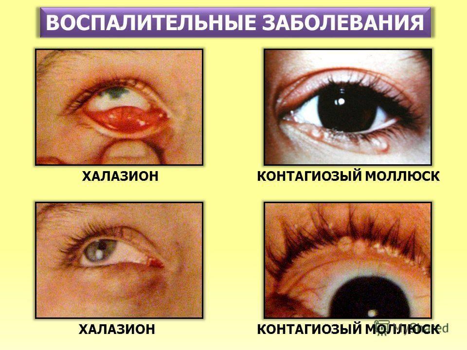 Болезни глаз у человека: названия, фото, информация о симптомах и лечении
