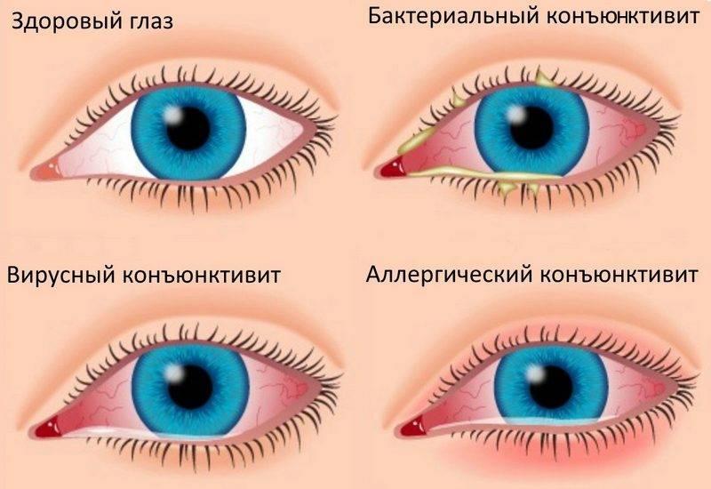 """Инфекционные болезни глаз у человека - """"здоровое око"""""""