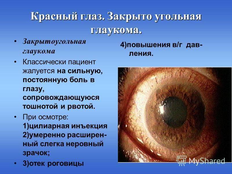 Глаукома или офтальмогипертензия - вылечимглаукому