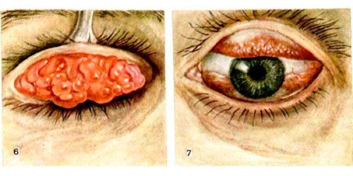Трахома глаз – причины, симптомы и лечение (фото)