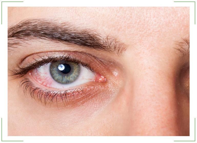 Краснеют глаза от линз: почему так происходит и что делать, что бы после стекол не покраснели белки
