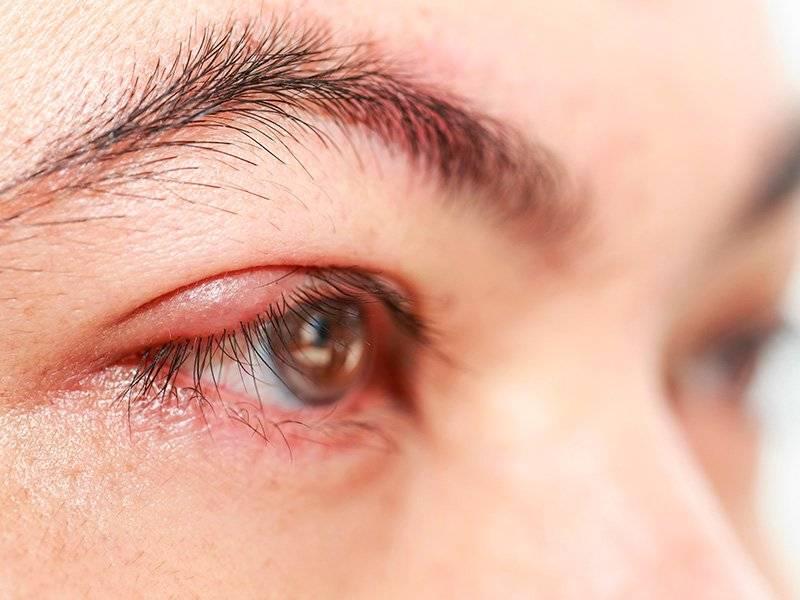 Как предотвратить появление ячменя на глазу: простые правила