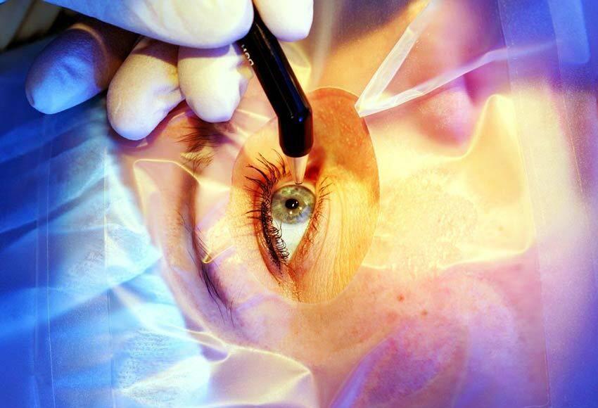 Отслоение сетчатки глаза, период после операции: что нельзя делать и основные ограничения — глаза эксперт