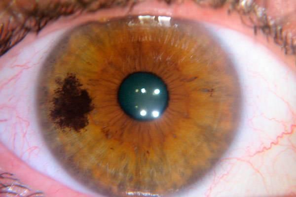Рак глаза: симптомы и лечение онкологии oculistic.ru рак глаза: симптомы и лечение онкологии