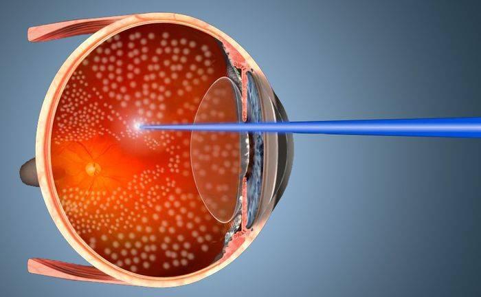 Лазерная коагуляция сетчатки глаза при беременности: можно ли ее делать?