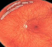 Отслоение сетчатки глаза: причины, симптомы, лечение и профилактика