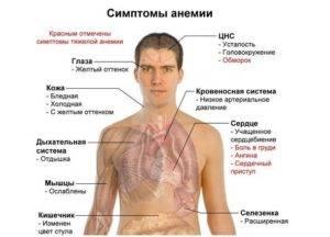 Дихромазия причины, симптомы, диагностика, лечение - 103doctor.ru