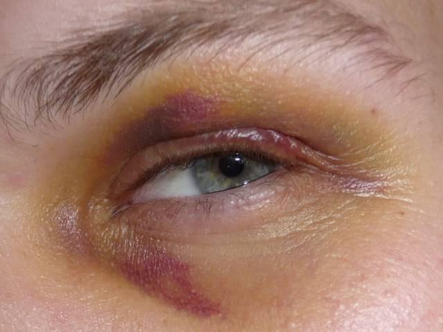 Сколько проходит синяк под глазом от удара - сам себе доктор