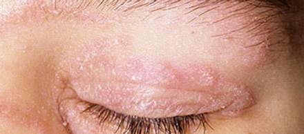Шелушится кожа вокруг глаз: почему это происходит, способы увлажнения