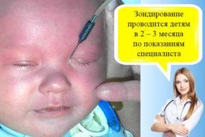 """Зондирование слезного канала: понятие и методика - """"здоровое око"""""""