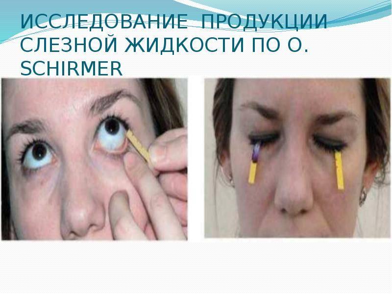 Синдром сухого глаза: причины, симптомы, лечение   рецепты здоровья